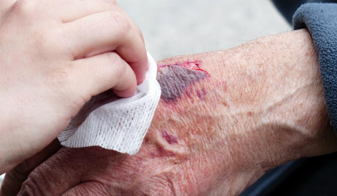 Rigenerazione della pelle: le ferite potranno guarire da sole?