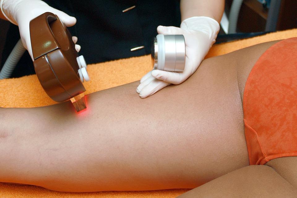 depilazione - responsabilità del dermatologo